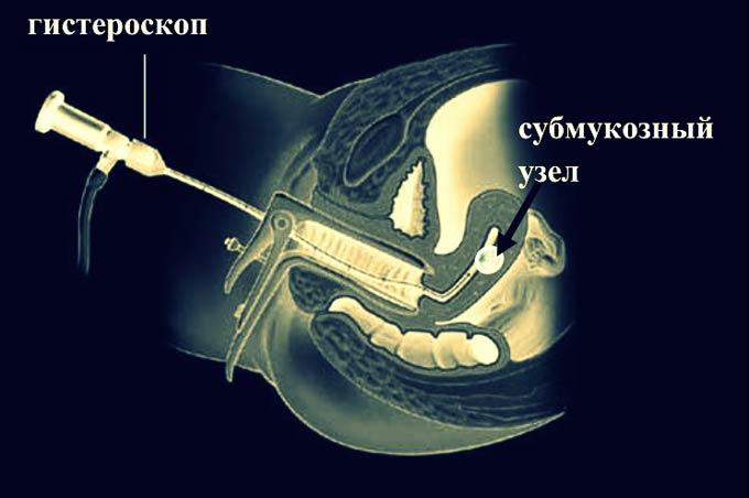 гистероскопия при миоме