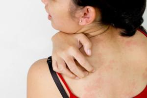 зуд кожи тела при заболеваниях печени