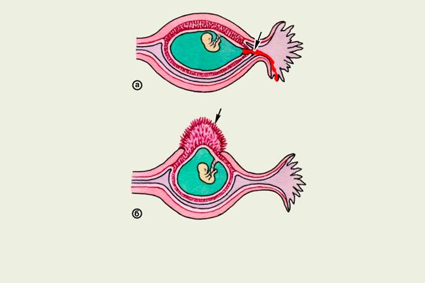 Разрыв маточной трубы, как одно из страшных последствий внематочной беременности