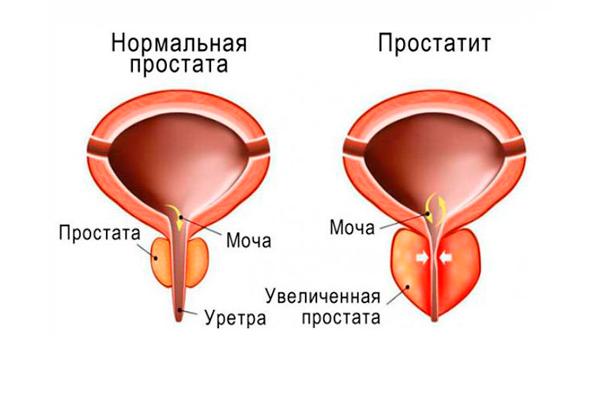 Применение Спемана для лечения острого простатита