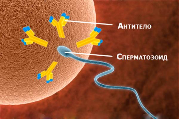 Захват сперматозоидов антителами АСАТ