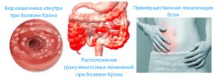 вид кишечника изнутри