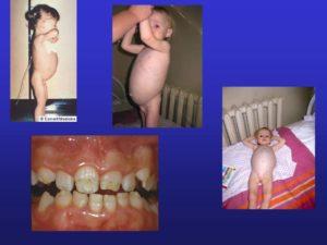 Симптомы целиакии у детей