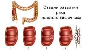 Стадии развития рака толстого кишечника