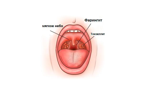 Боль в горле из-за фарингита