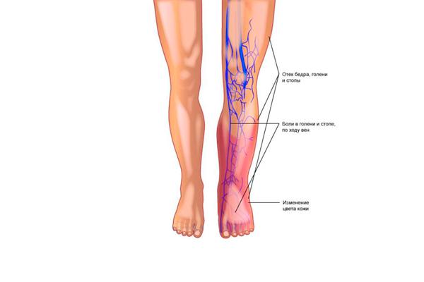 Проведение анализа на волчаночный антикоагулянт с целью выяснить причину тромбоза сосудов