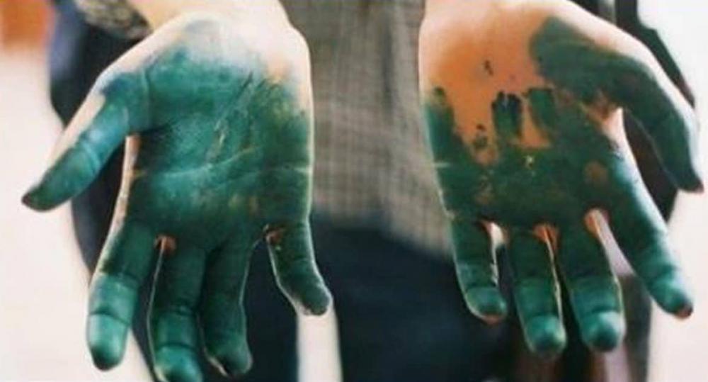 Как отмыть зеленку с кожи рук и ногтей: народные и подручные средства