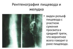 Рентген желудка
