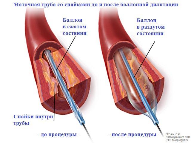 маточная труба со спайками