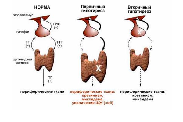 Гипотиреоз, как одна из причин повышения уровня пролактина