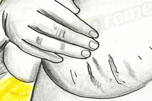 сильные растяжки на грудях во время беременности