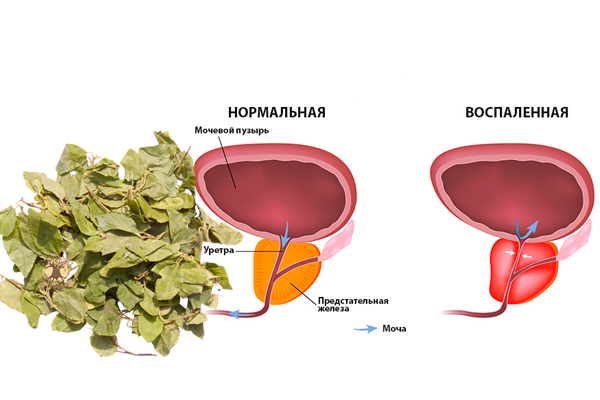 Лечение простатита Боровой маткой