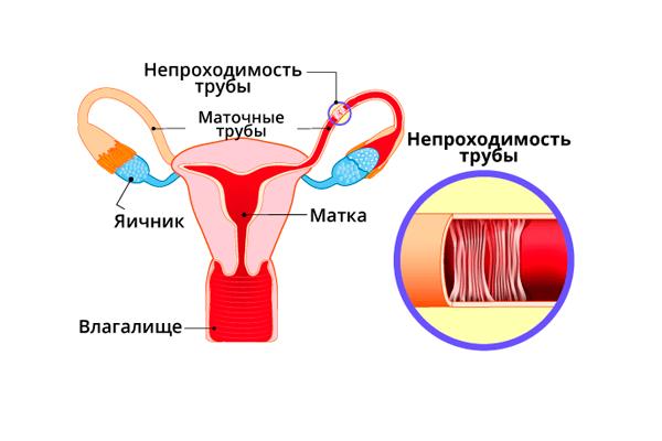 Применение в случае непроходимости маточных труб