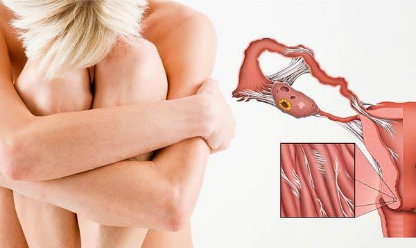 симптомы туберкулеза матки