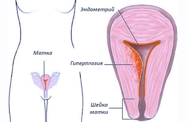 Поражение недугом эндометрия в полости матке