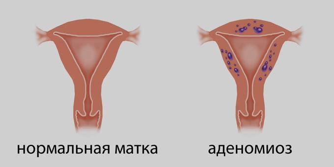 аденомиоз и нормальная матка