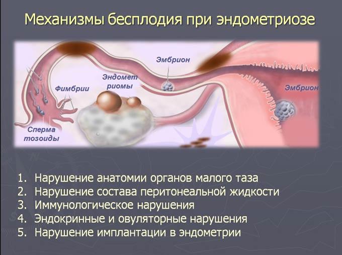 бесплодие при эндометриозе