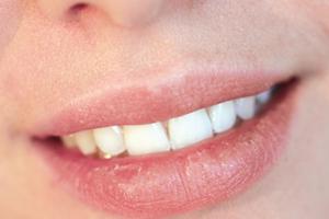 сохнут губы при беременности на ранних сроках