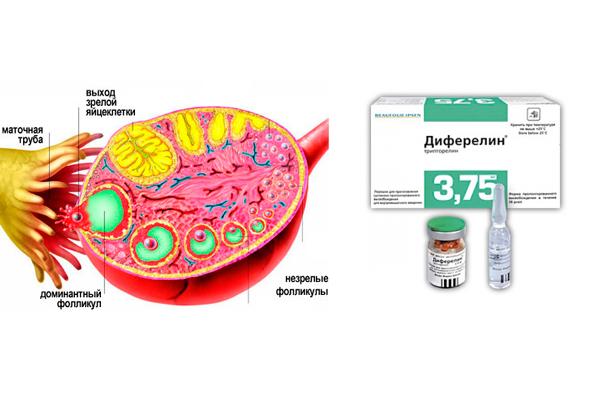 Влияние Диферелина на созревание яйцеклетки