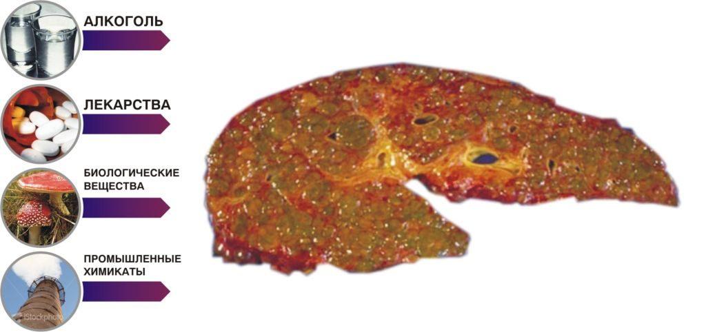 Виды заболеваний печени