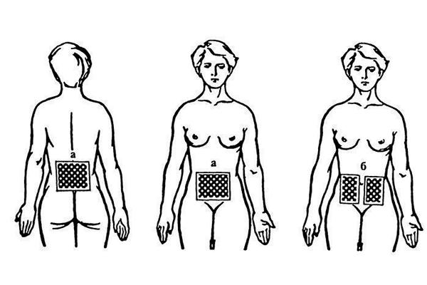 Ампипульсотерапия в помощь при женском бесплодии