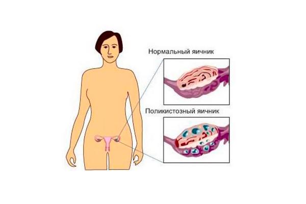 Повышенный уровень антимюллерова гормона в следствии поликистоза яичников