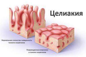 Методы диагностики целиакии