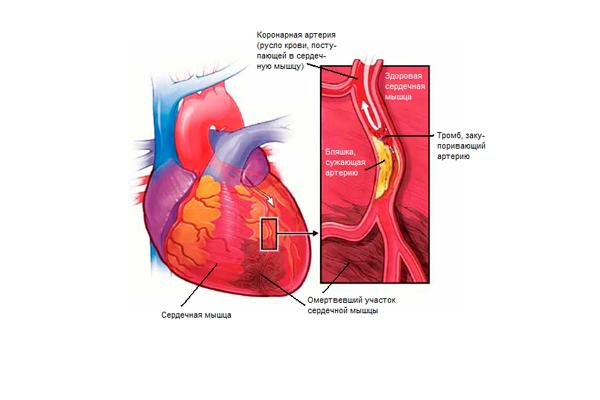 Противопоказание на препарат Прогинова при инфаркте миокарда