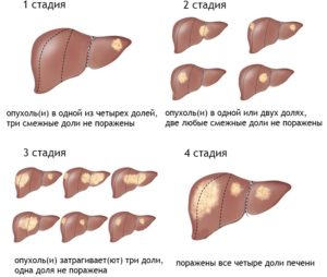 Стадии опухоли печени