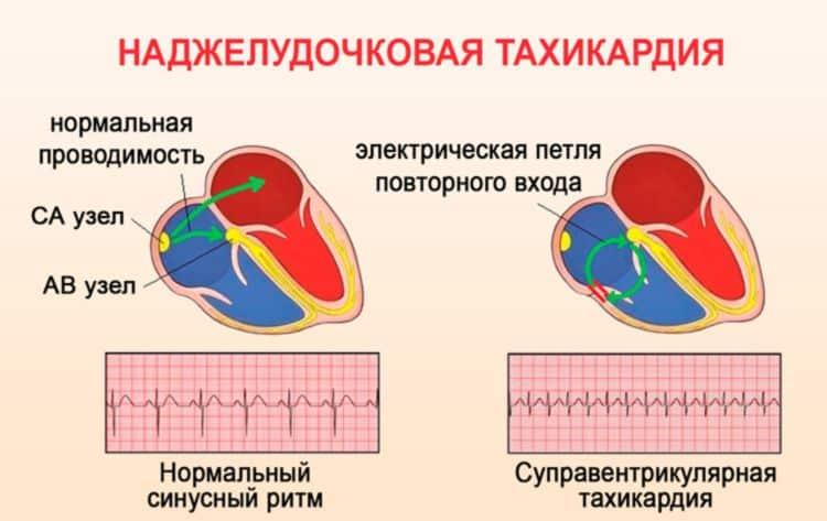 Наджелудочковая тахикардия (суправентрикулярная):причины и лечение