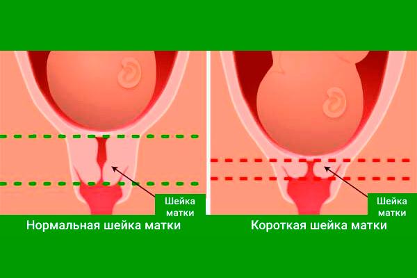 Нормальная длина шейки матки при беременности