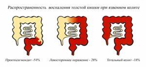 Распространенность болезни толстой кишки