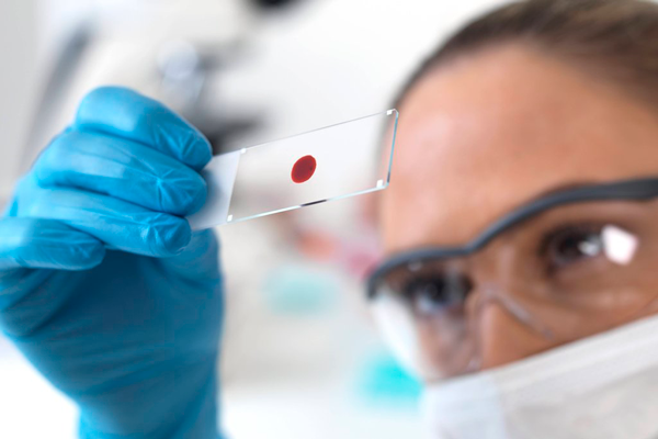 Анализ крови на ХГЧ