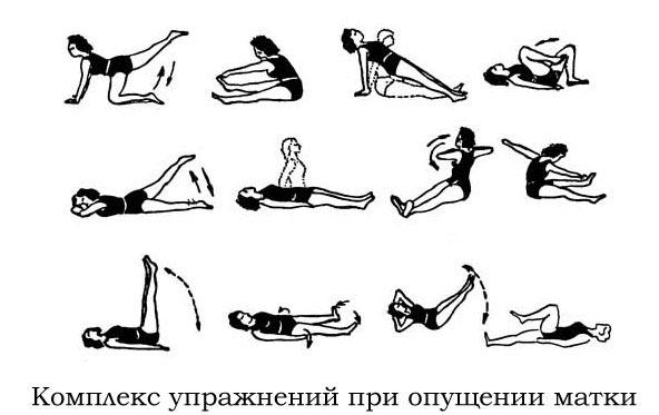 упражнения Кегеля при опущении матки