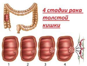 4 стадии рака толстой кишки