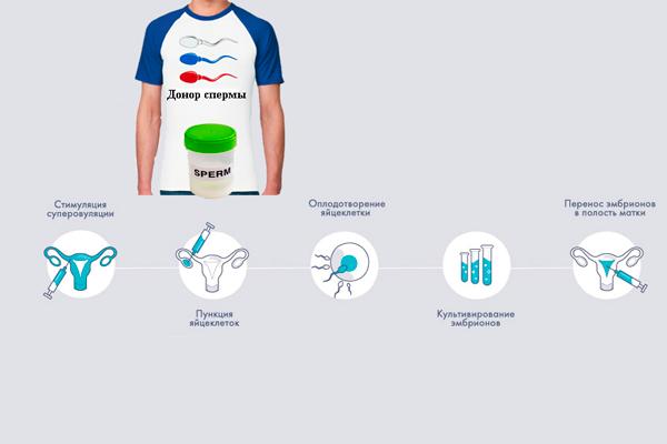 Схема проведения ЭКО с донорской спермой