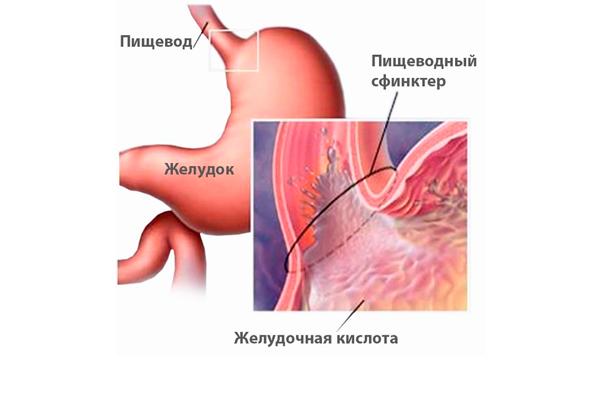 Расстройство желудка на ранних сроках беременности в следствии диспепсии