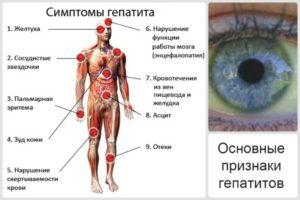 Симптомы гепатита В