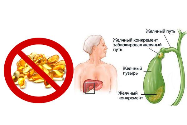 Запрет на употребление жирной кислоты Омега 3 при наличии желчнокаменной болезни