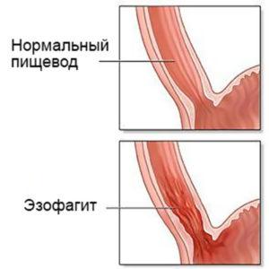 как выглядит эзофагит