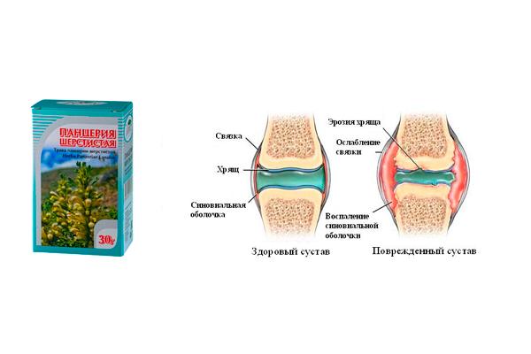 Прием измагена при артрите