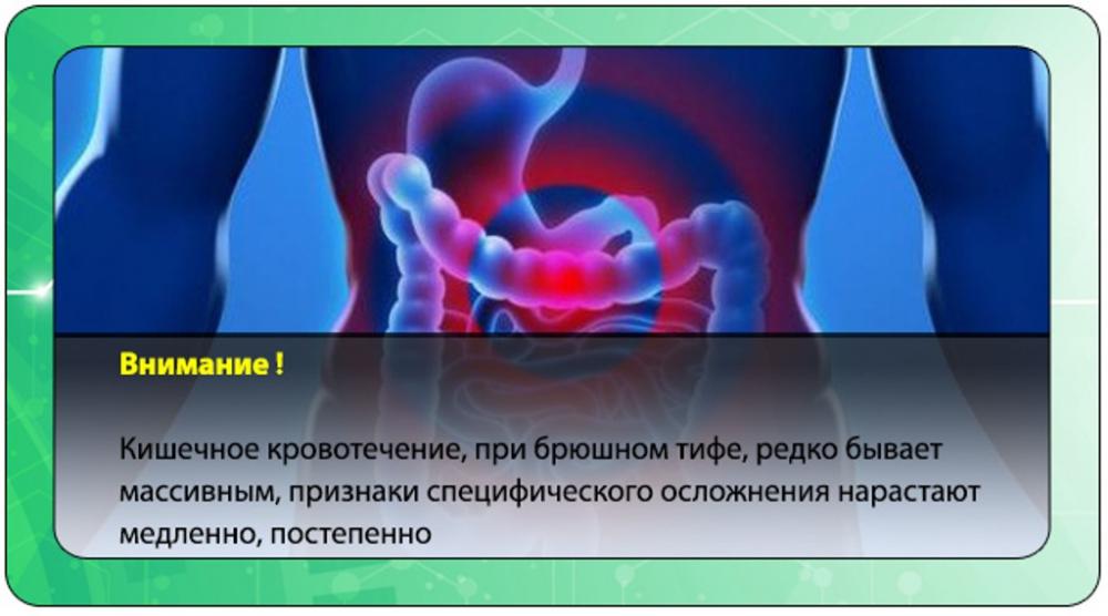 брюшной тиф симптомы (главный ключ)