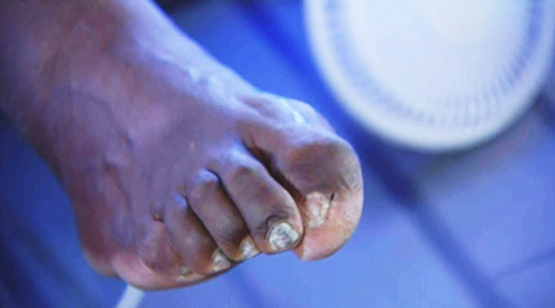 Спортсмены никогда не жалуются: пугающая сторона побед - 12 историй с фото