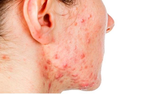 Угревая сыпь на коже при мультикистозе яичников