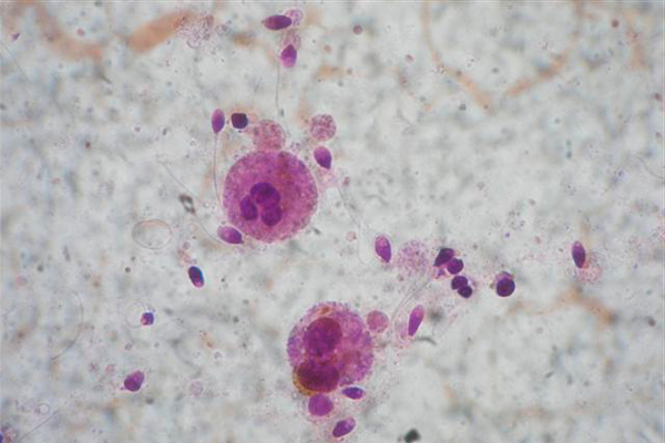 Лейкоциты в спермограмме