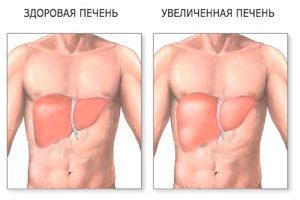 Симптомы нездоровой печени