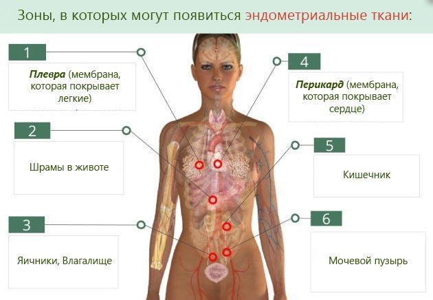 зоны эндометриальных тканей