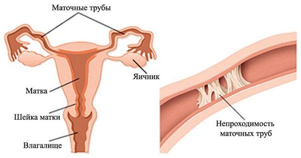 фаллопиевы или маточные трубы