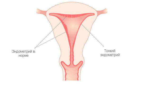 Применение заместительной гормональной терапии в случае тонкого эндометрия