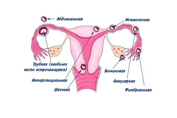 Появление спаек в следствии внематочной беременности
